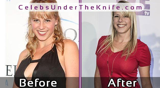 Jodie Sweetin Boob Job? Before + After Photos Of Her Plastic Surgery