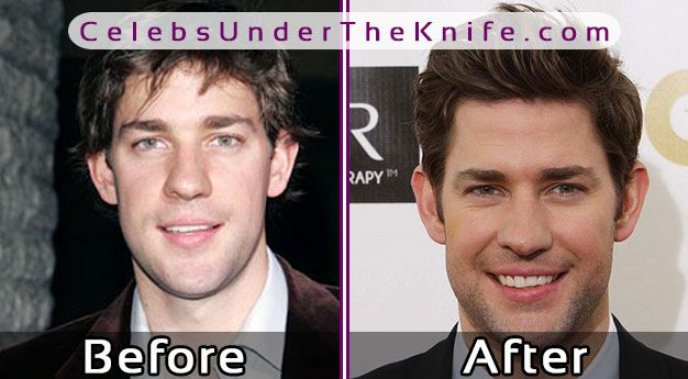 John Krasinski Nose Job? – Before & After Plastic Surgery