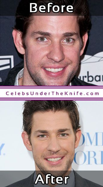 John Krasinski Plastic Surgery Photos