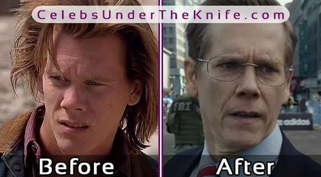 Kevin Bacon After Rhinoplasty   Cosmetic Procedure