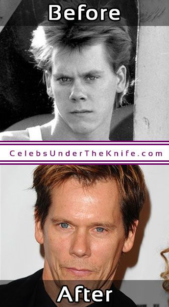 Kevin Bacon Nose Job Before After Surgery