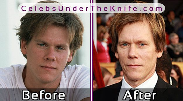 Kevin Bacon Plastic Surgery Pics
