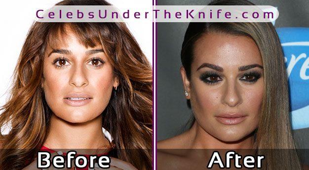 Lea Michele Cosmetic Procedure