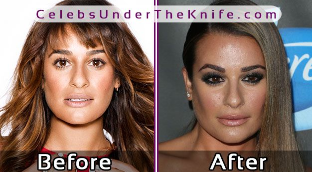 Lea Michele's Before Photos – Glee Star's Had Surgery?