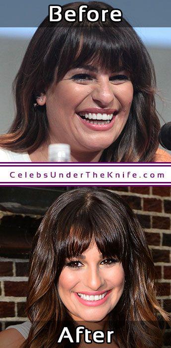 Lea Michele Potential Chin Job