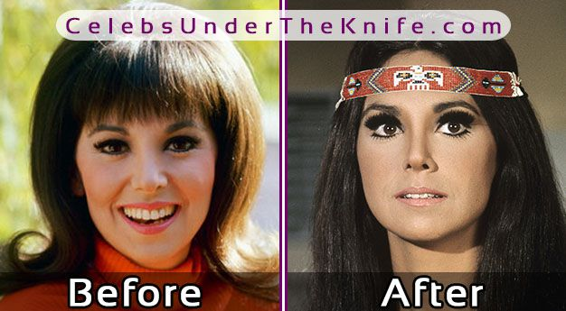 Marlo Thomas Plastic Surgery Photos? Before + After Her Nose Job!
