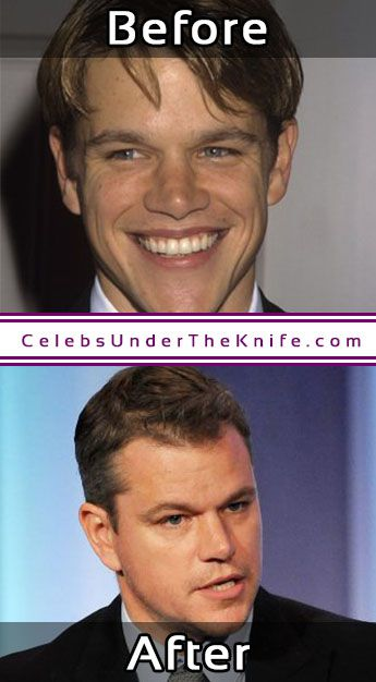 Matt Damon Cosmetic Procedure Rhinoplasty