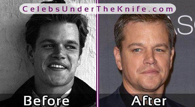 Matt Damon Nose Job Photos