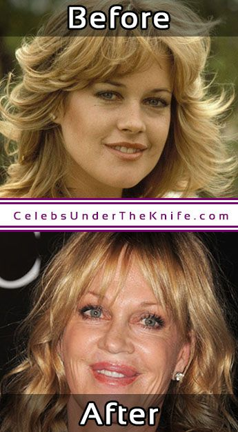 Melanie Griffith Cosmetic Surgery Photos