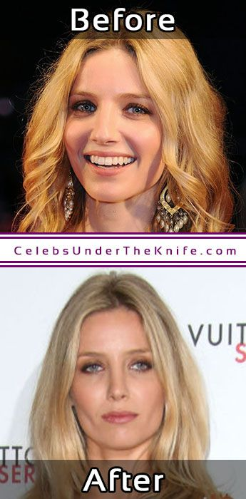 Annabelle Wallis Cosmetic Procedure Results