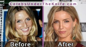 Annabelle Wallis Nose Job Photos