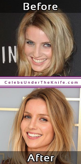 Annabelle Wallis Rhinoplasty Before After Pics