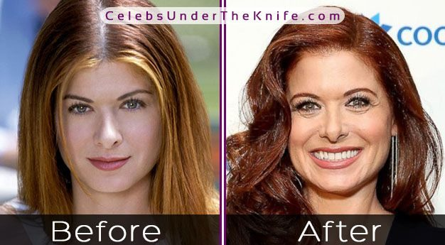 Debra Messing Nose Job Before After