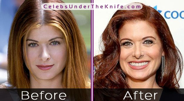 Debra Messing's Nose Job …Is It Really True?