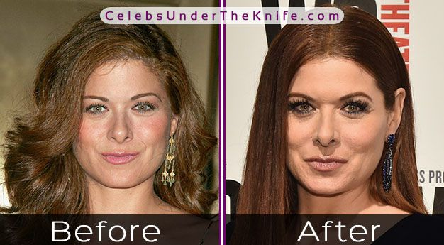 Debra Messing Photos Plastic Surgery