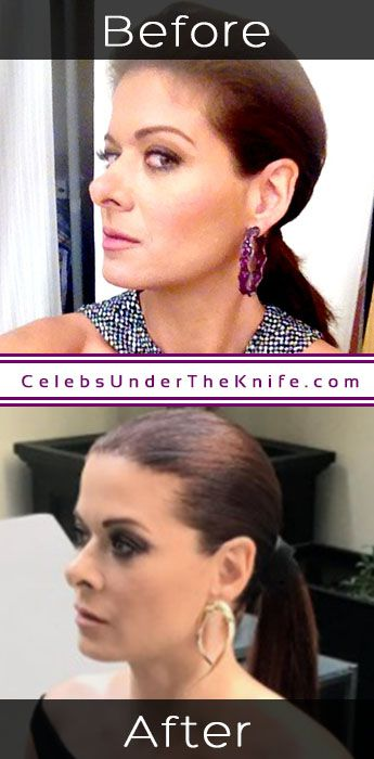 Debra Messing Rhinoplasty Results