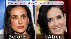 Demi Moore Before After Surgery