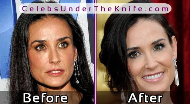demi moore before plastic surgery  check our her pics before   after