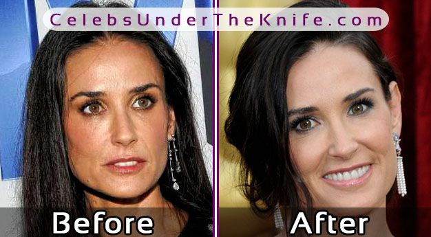 Demi Moore Before After Plastic Surgery – Pics Inside