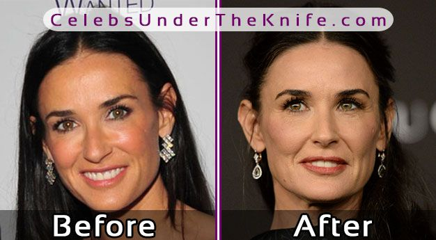 Demi Moore Cosmetic Procedure Photos