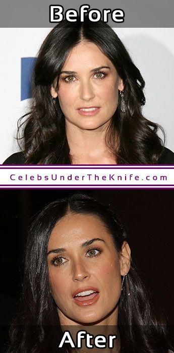 Demi Moore Nose Job Pics