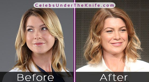Ellen Pompeo Before After Photos