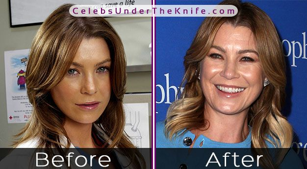 Ellen Pompeo Alleged Surgery – Grey's Anatomy Superstar Surgery Rumors