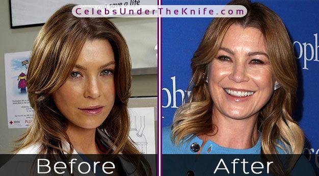Ellen Pompeo Cosmetic Procedure Results