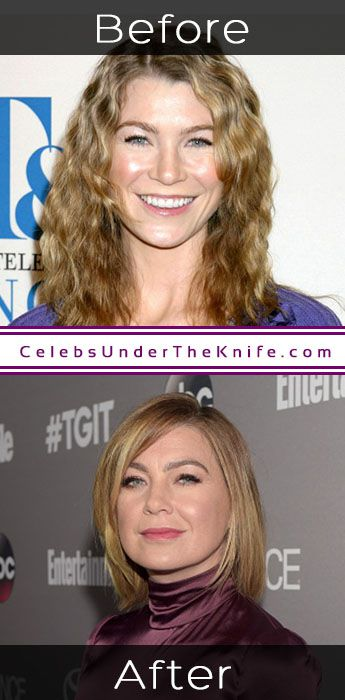 Ellen Pompeo Plastic Surgery Photos