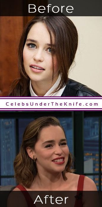 Emilia Clarke Before Going Under The Knife