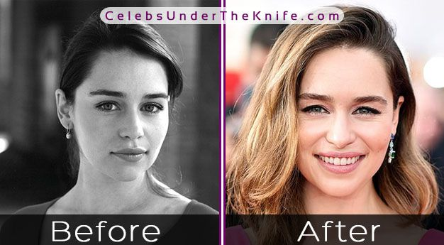 Emilia Clarke Before and After Photos