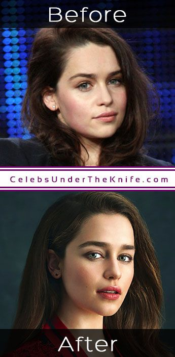 Emilia Clarke Cosmetic Procedure Results