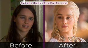 Emilia Clarke Plastic Surgery Rumors