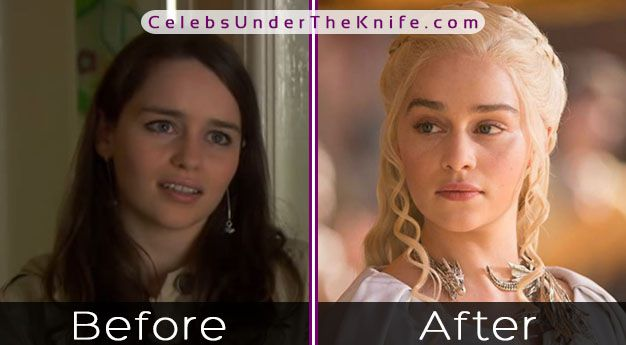Emilia Clarke's Plastic Surgery? Game of Thrones Star Gone Under The Knife?