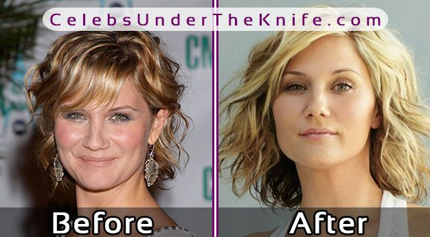 Jennifer Nettles Before After Photos