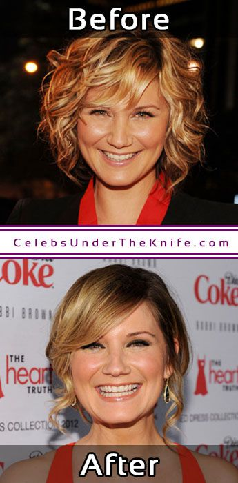 Jennifer Nettles Surgery Rumorss Nose Job Anyone
