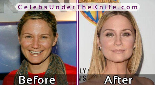 Jennifer Nettles Plastic Surgery
