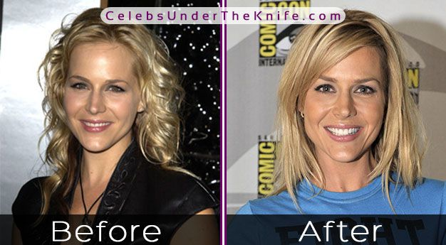 Julie Benz Before After Photos
