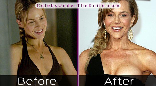 Julie Benz Boob Job? Photo Evidence of Potential Plastic Surgery?