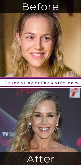 Julie Benz Cosmetic Procedure Results
