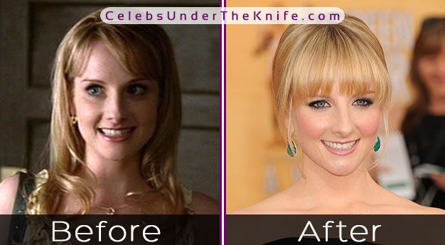 Melissa Rauch Before and After