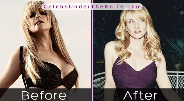 Melissa Rauch Breast Reduction Photos