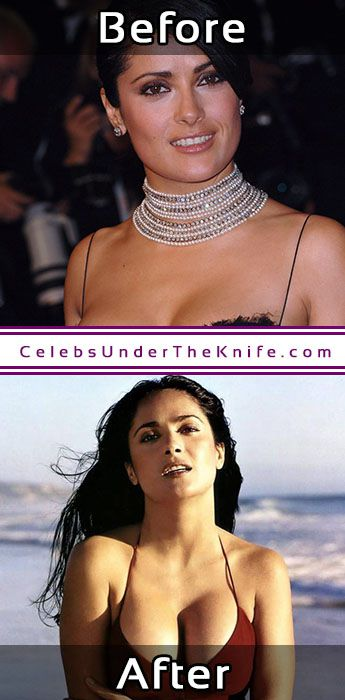 Salma Hayek Before After Photos Cosmetic Procedure