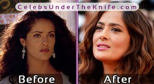Salma Hayek Plastic Surgery Rumors