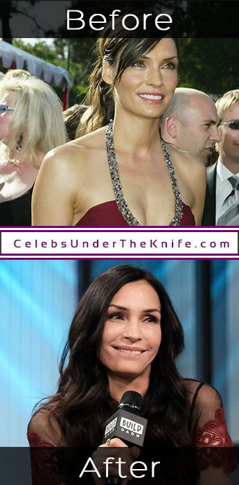 Famke Janssen Cosmetic Procedure