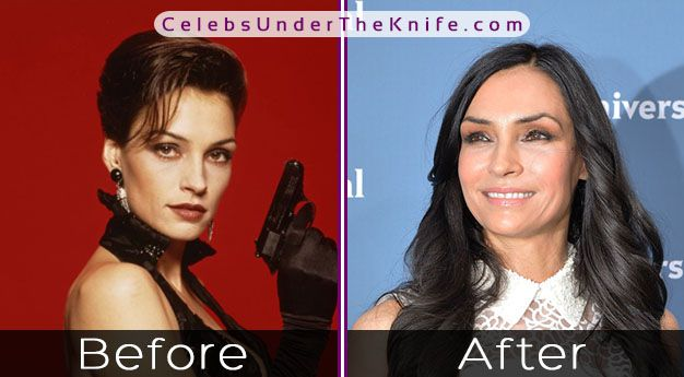 Famke Janssen's Plastic Surgery? Gorgeous? Yes. Surgery? Maybe.