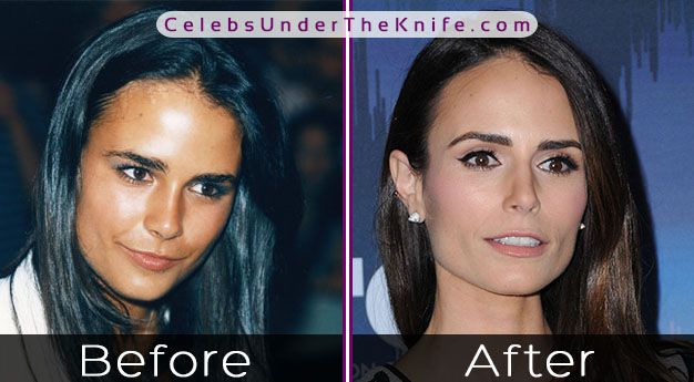 Jordana Brewster Surgery Rumors – Fast & Furious Star