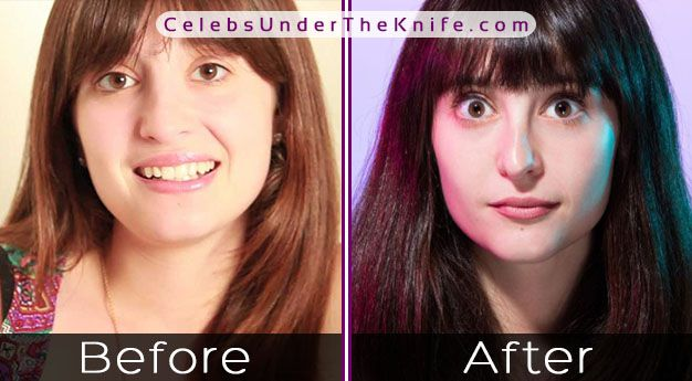 Allison Raskin's Nose Job – Before + After Photos