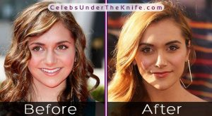 Alyson Stoner Before After Nose Job
