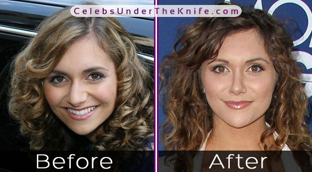 Alyson Stoner Cosmetic Procedure Photos